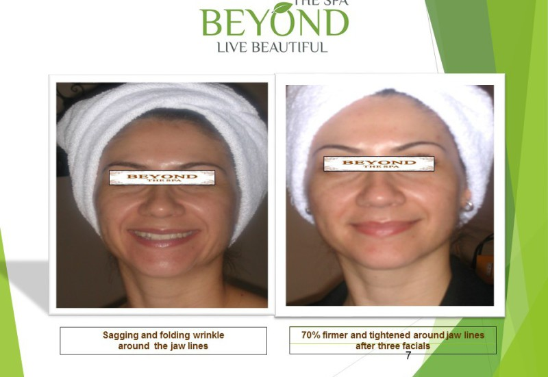 We are #1 Specialized in Ultherapy Face&Neck Lift.